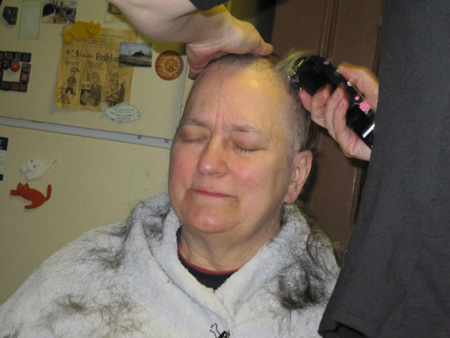 After Starting Chemotherapy, The Wife Loses Her Waist-Length Hair, March 2011